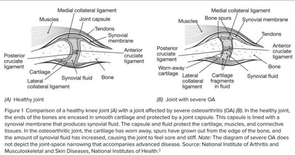 Representación gráfica de la osteoartritis