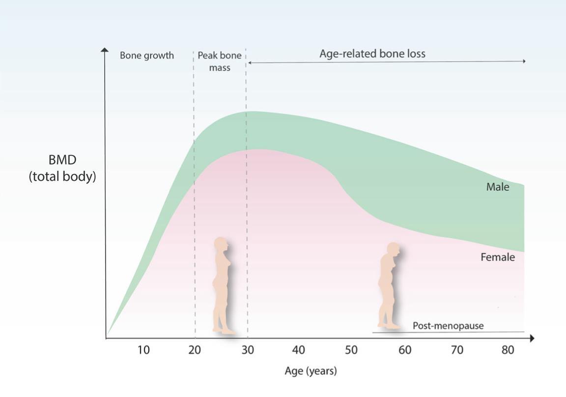 Densidad de masa ósea (DMO) a lo largo de la vida