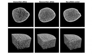 Microarquitectura del hueso en atletas femeninas con amenorrea y atletas femeninas con menstruación